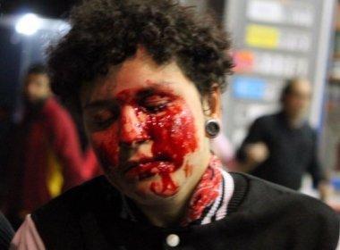 Após jovem ter olho perfurado, PM pede apuração sobre ação em protestos