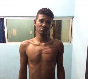 Homem é preso atacado pessoas com facão na Urbis I